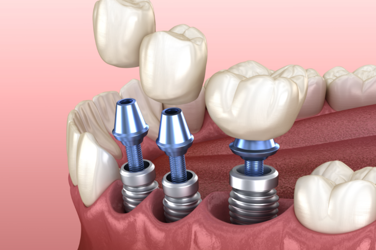 dental implant placements